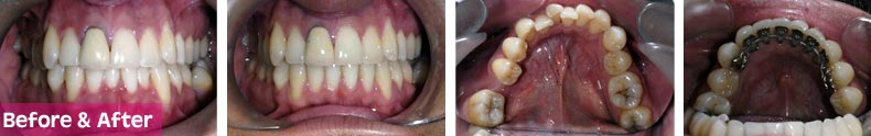 incognito_braces_before-after